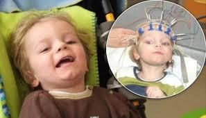 images ضایعه مغزی چیست؟ چگونه جلوگیری شود؟